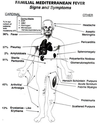 FMF Signs Symptoms Chart